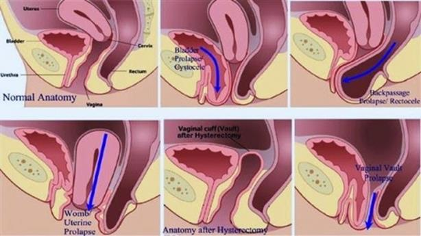 What is Pelvic Organ Prolapse? - Coreset Fitness